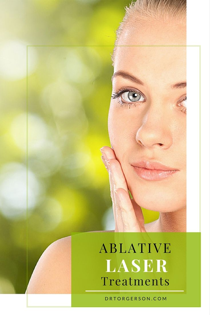 Ablative Laser Treatments Laser skin resurfacing is divided into