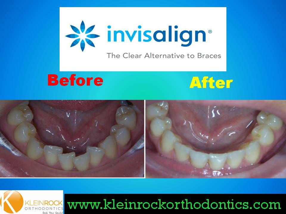 Crowding Treated With Invisalign Invisalign Braces Alternative