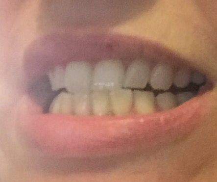 Before, my top teeth are great, my bottoms are a bit yellowish. #PowerCouple #Sponsored
