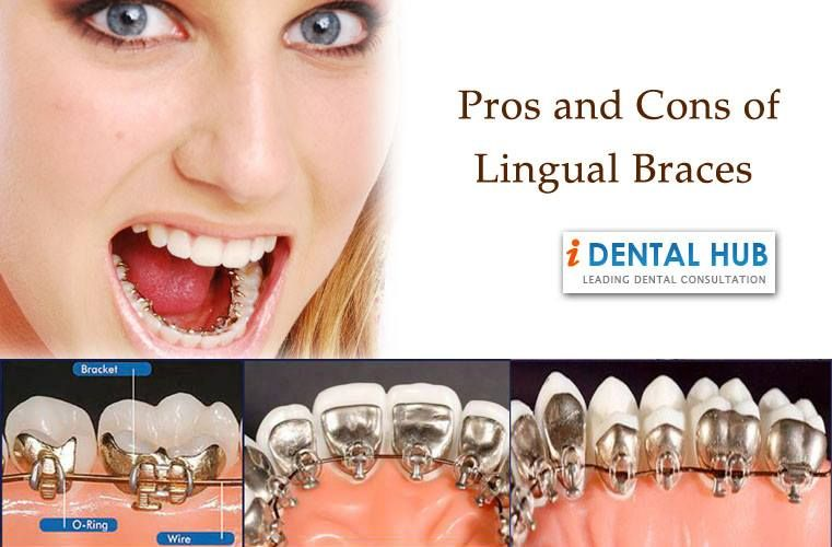 Pros And Cons Of Lingual Brace Lingual Braces Teeth Braces Teeth Braces Cost