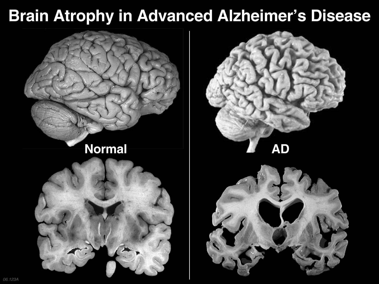 How To Treat Alzheimers Disease With Only  Teaspoons Of Coconut Oil Daily