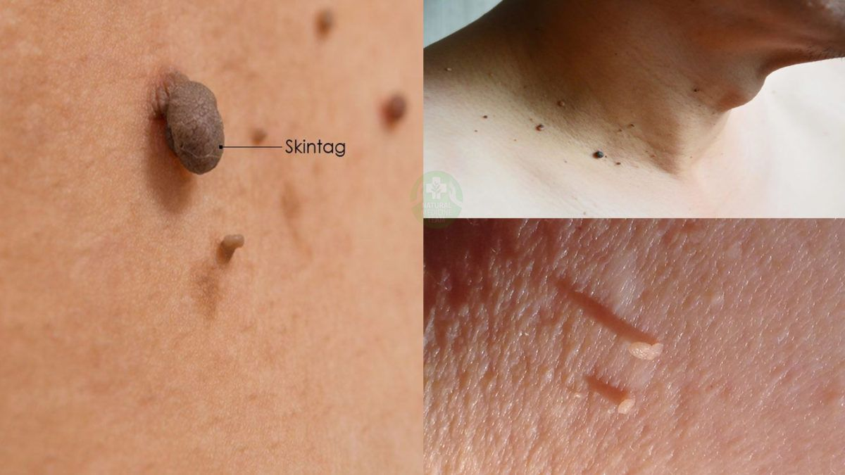 Succeed In Removing Skin Tags With These Much Gentler And More