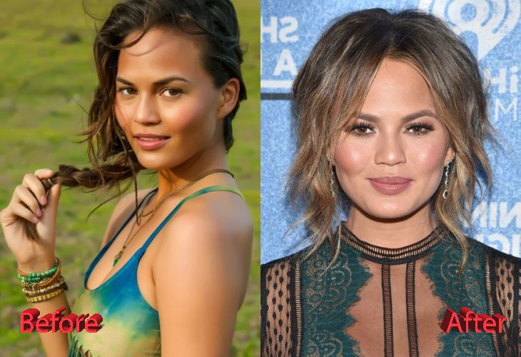 Chrissy Teigen Plastic Surgery Before And After3 Then Now