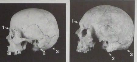 Sexual dimorphism in human skull