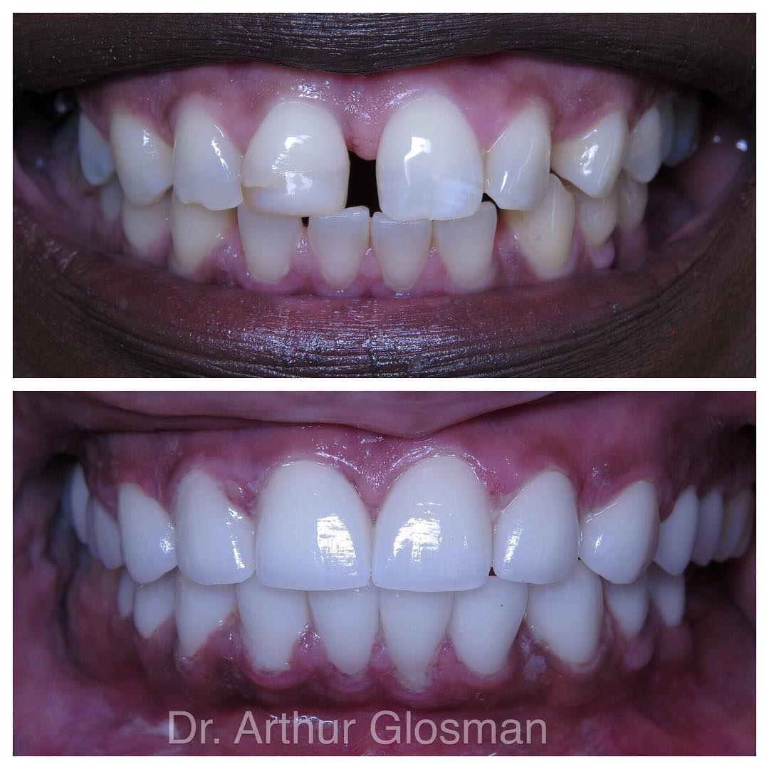 Porcelain Veneers can close gaps, whiten teeth, fix broken