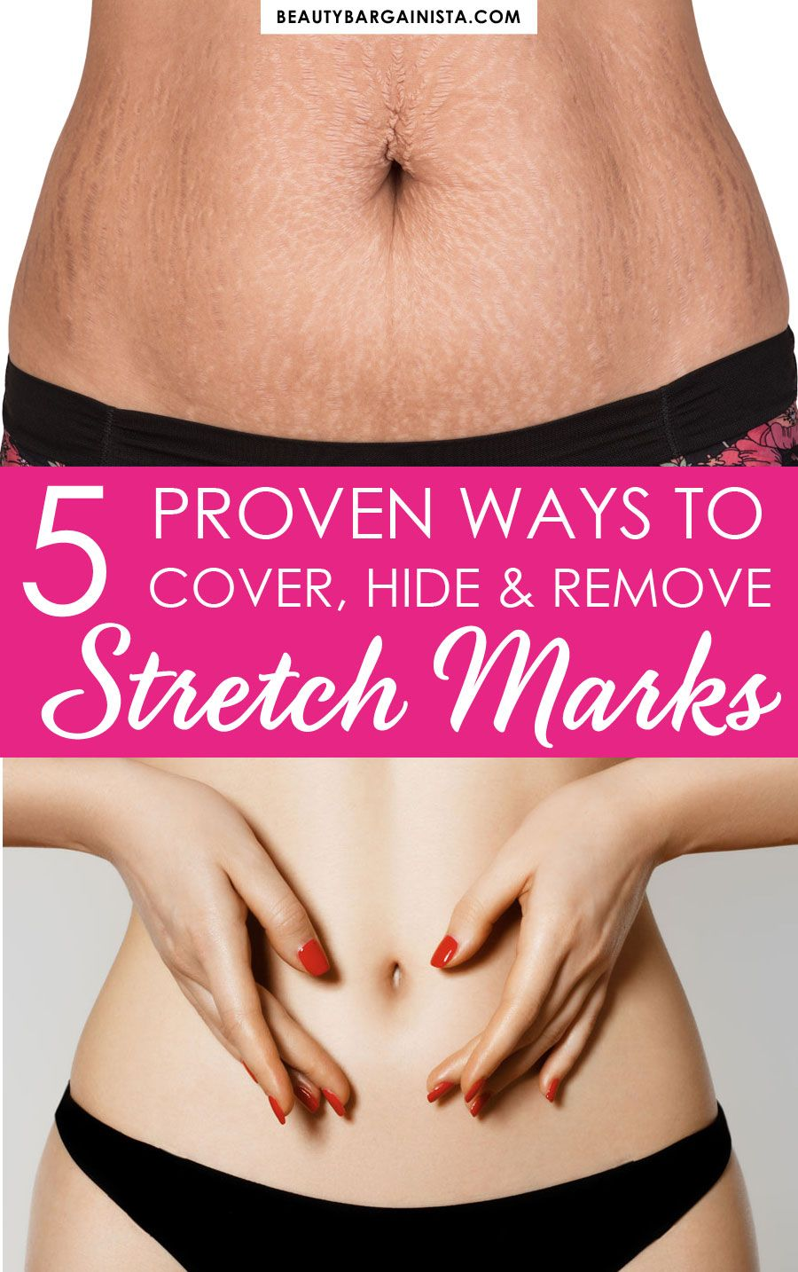 8a468cab8556af52ab5154441643251e - How To Get Rid Of Stretch Marks On Thighs Teenager