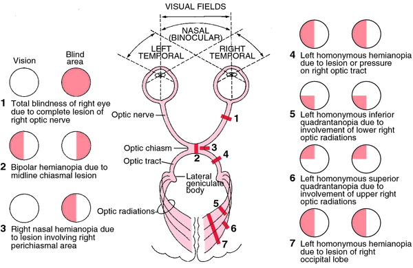 Types of anopsias visual field defects and corresponding anatomical insults note that anything behind the chiasm gives  homonymo  also rh pinterest