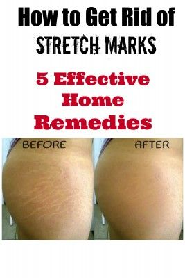 How To Get Rid Of Stretch Markss With Household Items