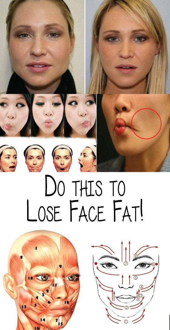 how to lose cheek fat