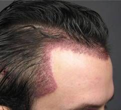 "Restoring Temple Hair (""Temple Points"" or ""Temple Triangles"") with Hair Transplant Surgery?"