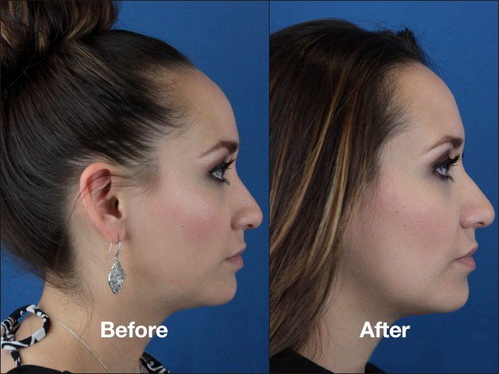 Kybella With Images Nose Surgery Double Chin Reduction Chin
