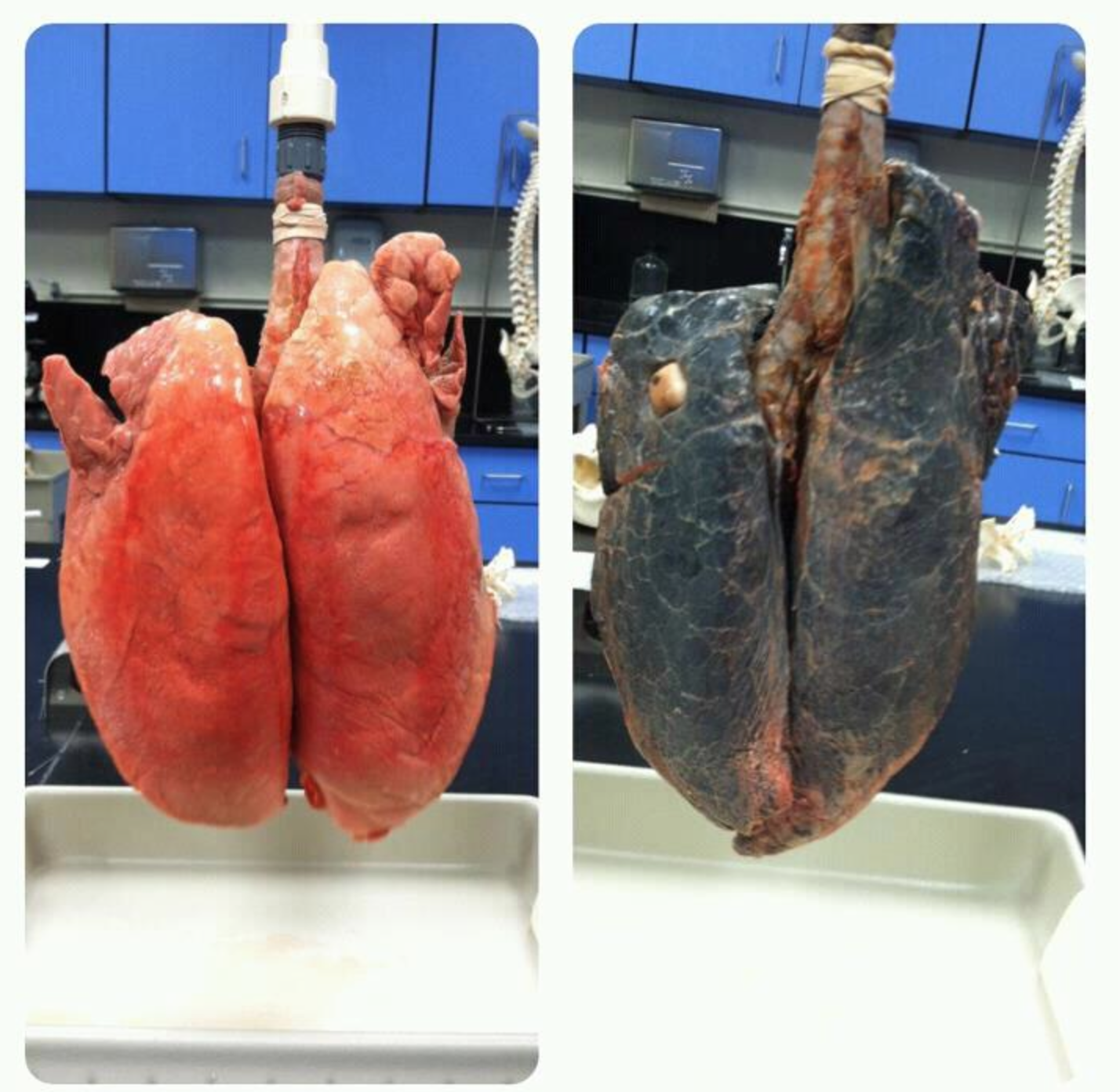 healthy lungs vs black lungs a simple reason that smoking
