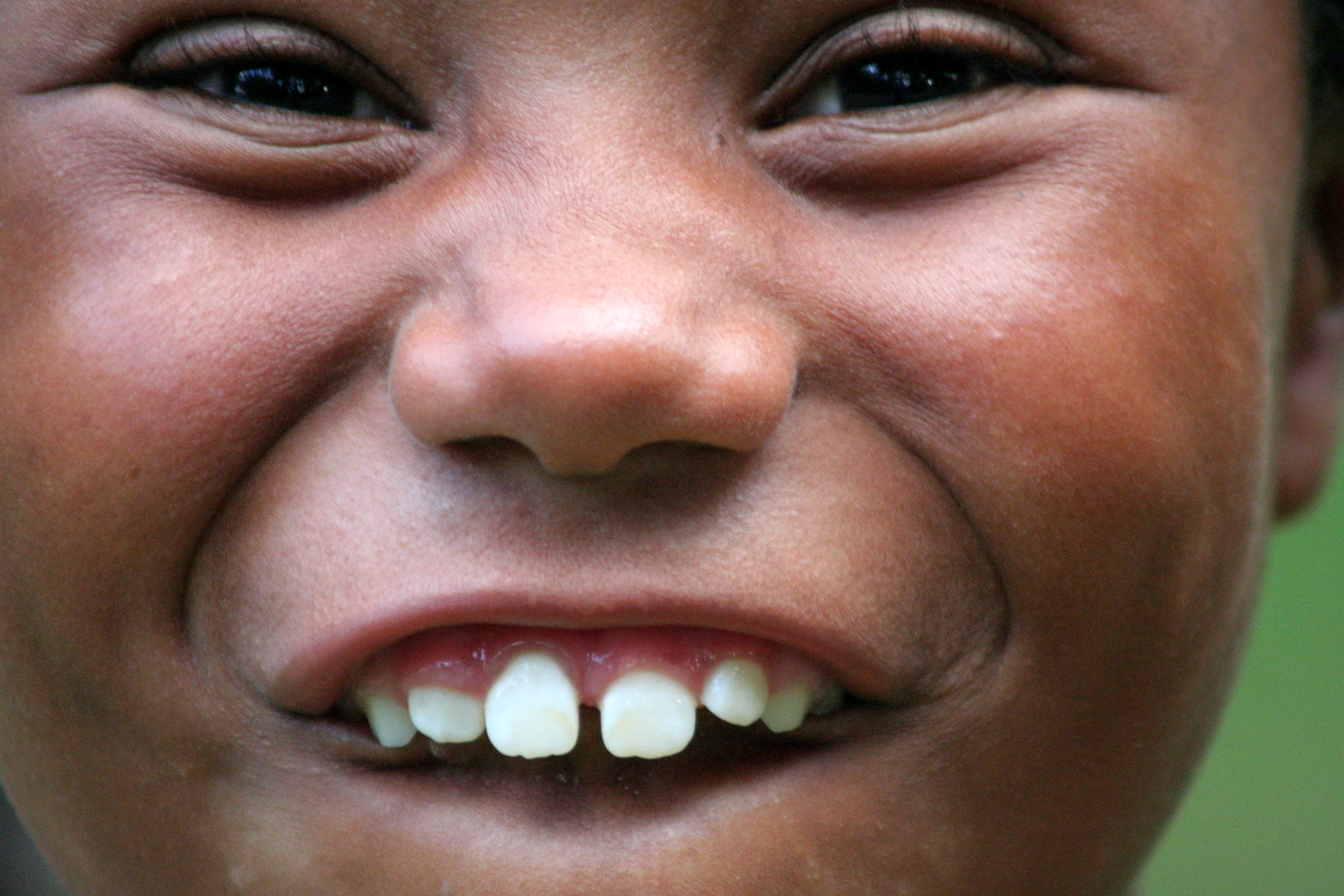 Children with Crooked Teeth find a ideal name for your