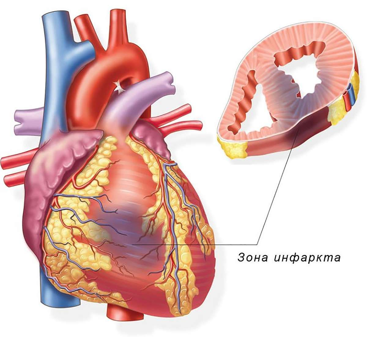 Инфаркт миокарда - симптомы, лечение, профилактика ...