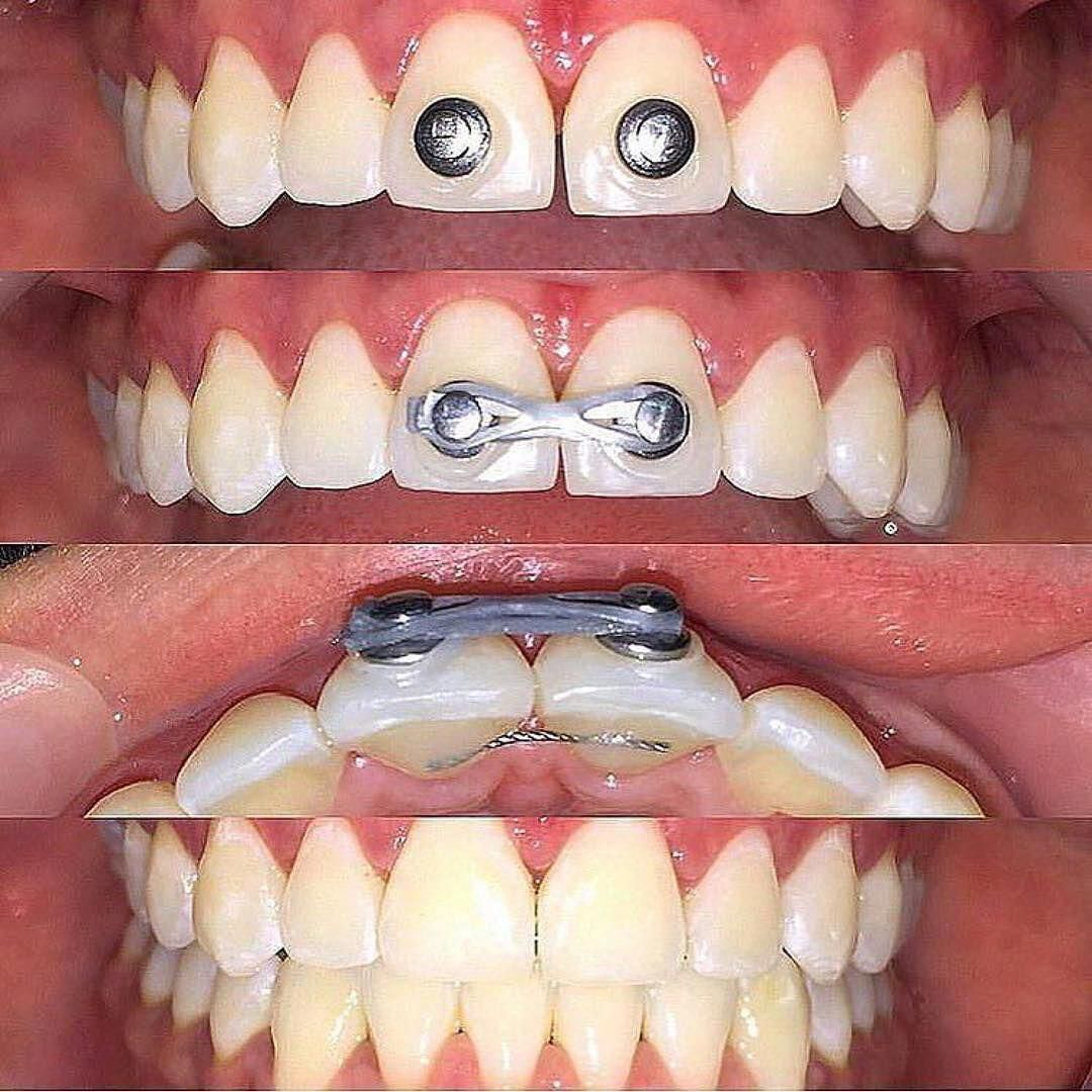 How you can close the gap between your 2 front teeth would