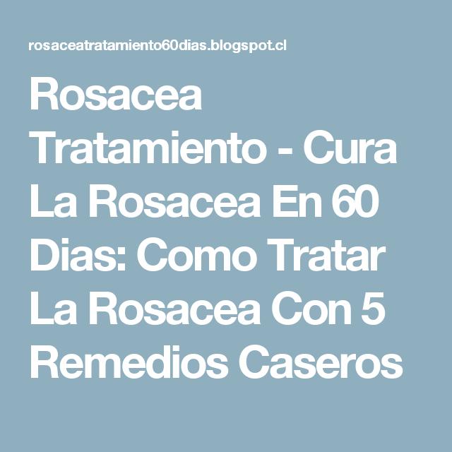 Rosacea Tratamiento Cura La Rosacea En 60 Dias Como Tratar La Rosacea Con 5 Remedios Caseros Rosacea Tratamiento Rosácea Remedios Para La Rosácea