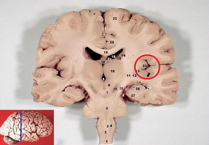 Figure Showing The Insular Cortex Circled In A Coronal Section Indicated By The Blue Line In The Inset Modified From Or Human Brain Brain Anatomy Physiology