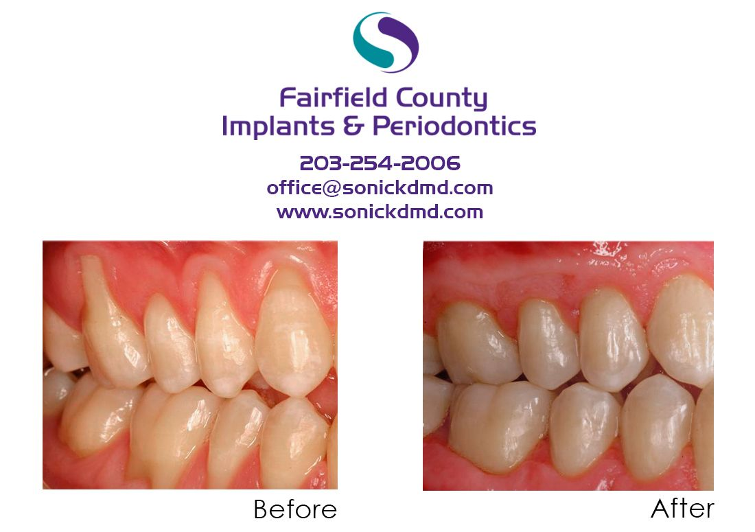 Pin by Michael Sonick on Fairfield County Implants and
