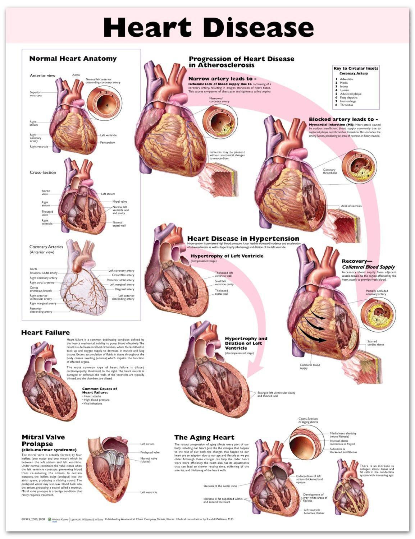 Heart disease chart poster laminated heart anatomy