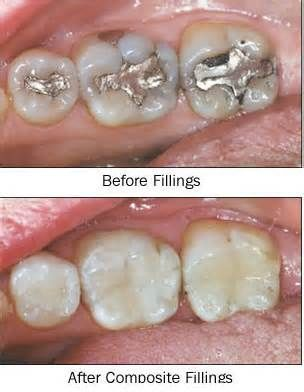 Firstly Local Anesthesia Would Be Provided To Numb The Area Around The Infected Teeth After It Is Done Dental Fillings Dental Treatment Restorative Dentistry