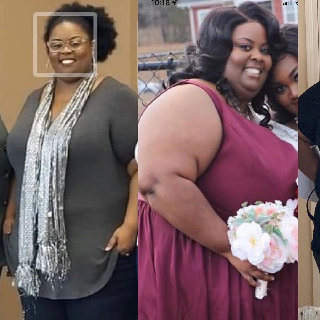 Pin on before and after weight loss stories 2020