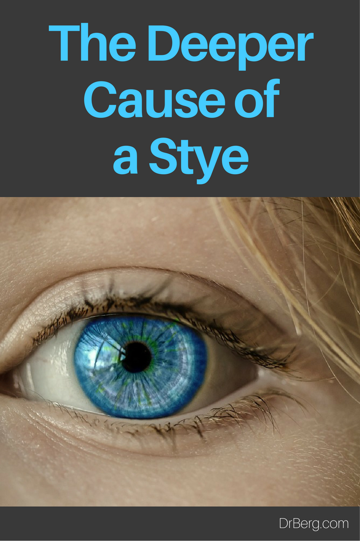 The Deeper Cause of a Stye Explained by Dr. Berg.   https://www.drberg.com/blog/body-conditions/the-cause-of-a-stye