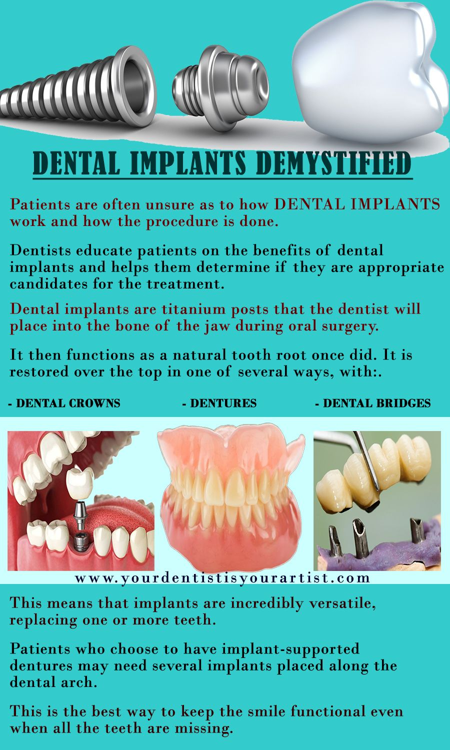 Where Brentwood Ca Area Patients Can Get The Best Dental Implants