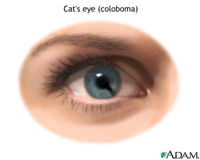 Artist S Impression Of A Coloboma In The Novel Clairvoyants With The Third Eye The Ability To Percei Eye Stye Remedies Skin Care Remedies Cat Eye Syndrome