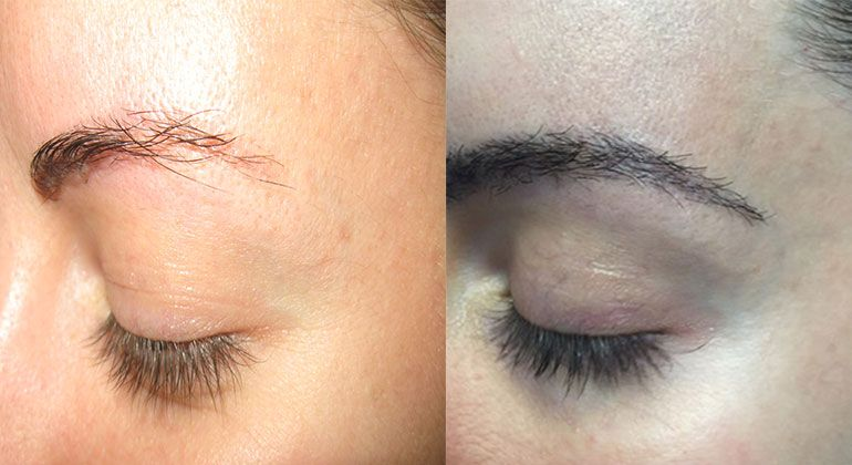 Female Before Anf After Eyebrow Transplant 6 Mon Post Op When Your