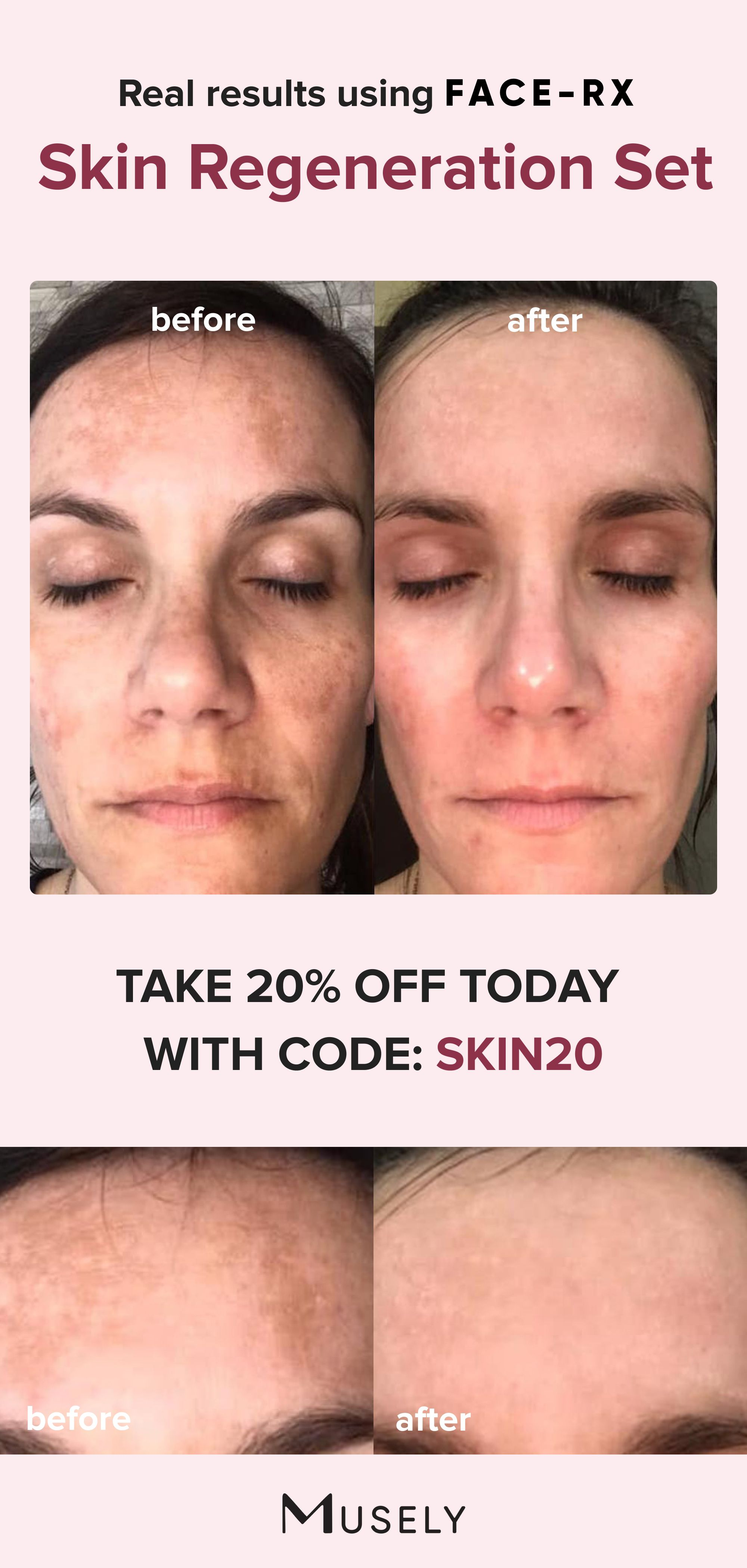 Prescription Anti Aging Made Simple Start Your Online Visit Today In 2020 Brown Spots On Face Spots On Face Anti Aging Skincare Routine