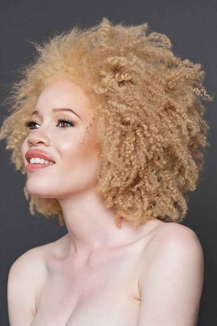 58 Albino People Who'll Mesmerize You With Their