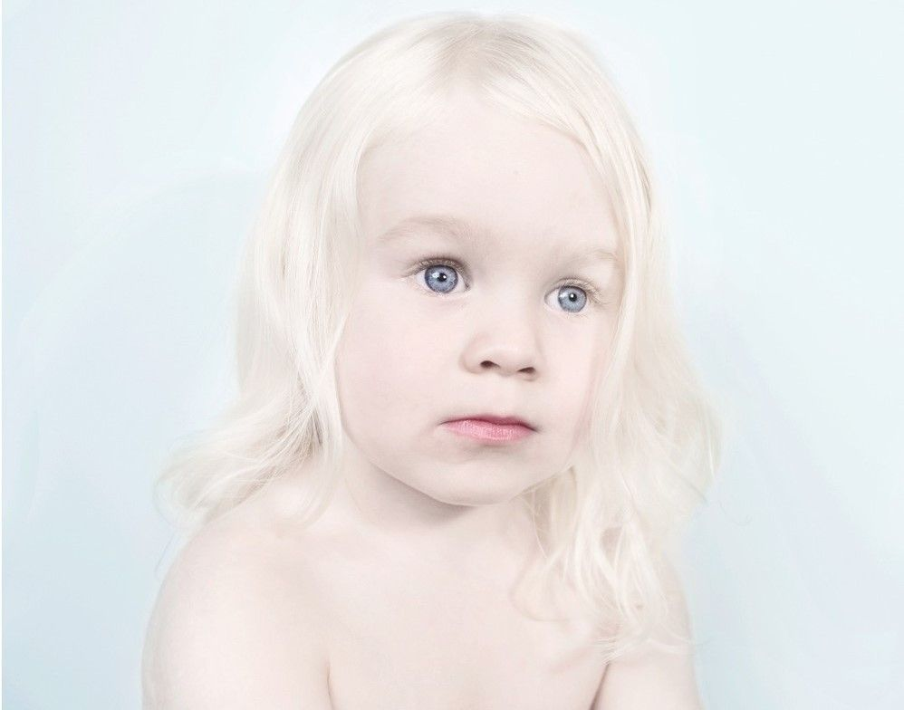 بیماری-آلبینیسم-یا-زالی-Albinism-bimari.jpg (998×784 ...