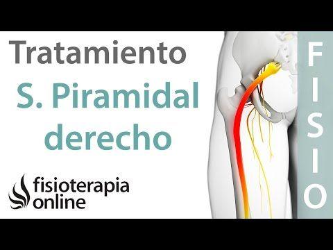 nervio ciatico mayor recorrido