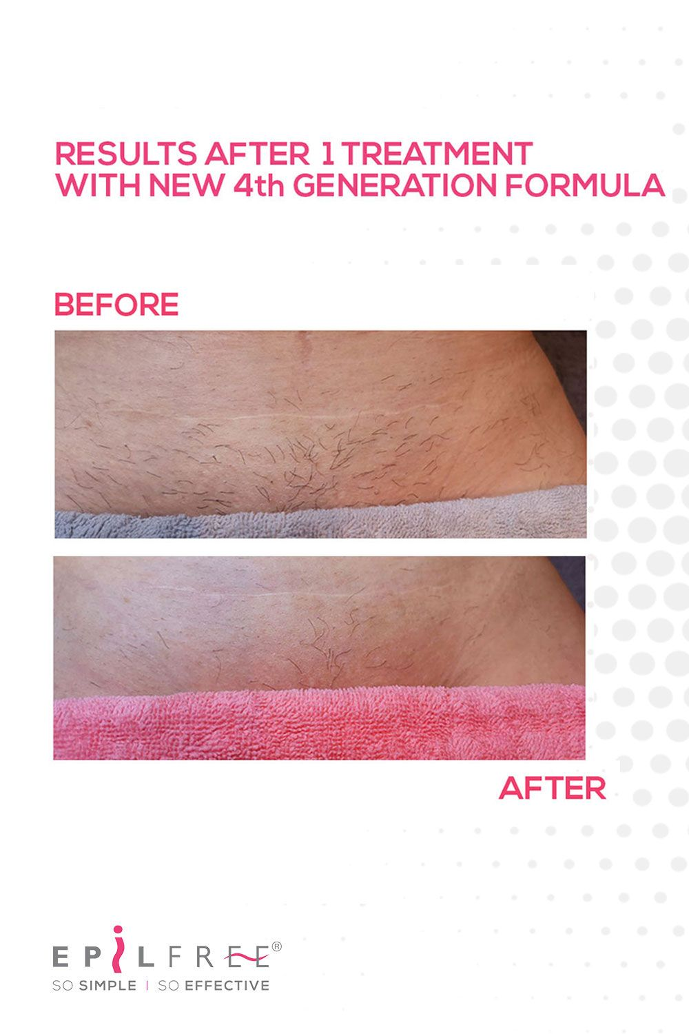 Brazilian Wax Before And After Photos : brazilian, before, after, photos, Removal, Results, Bikini, Waxing,