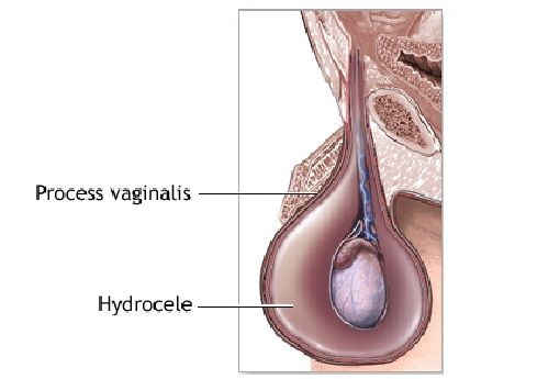 Hydrocele Symptoms Treatment And Surgery Causes ...