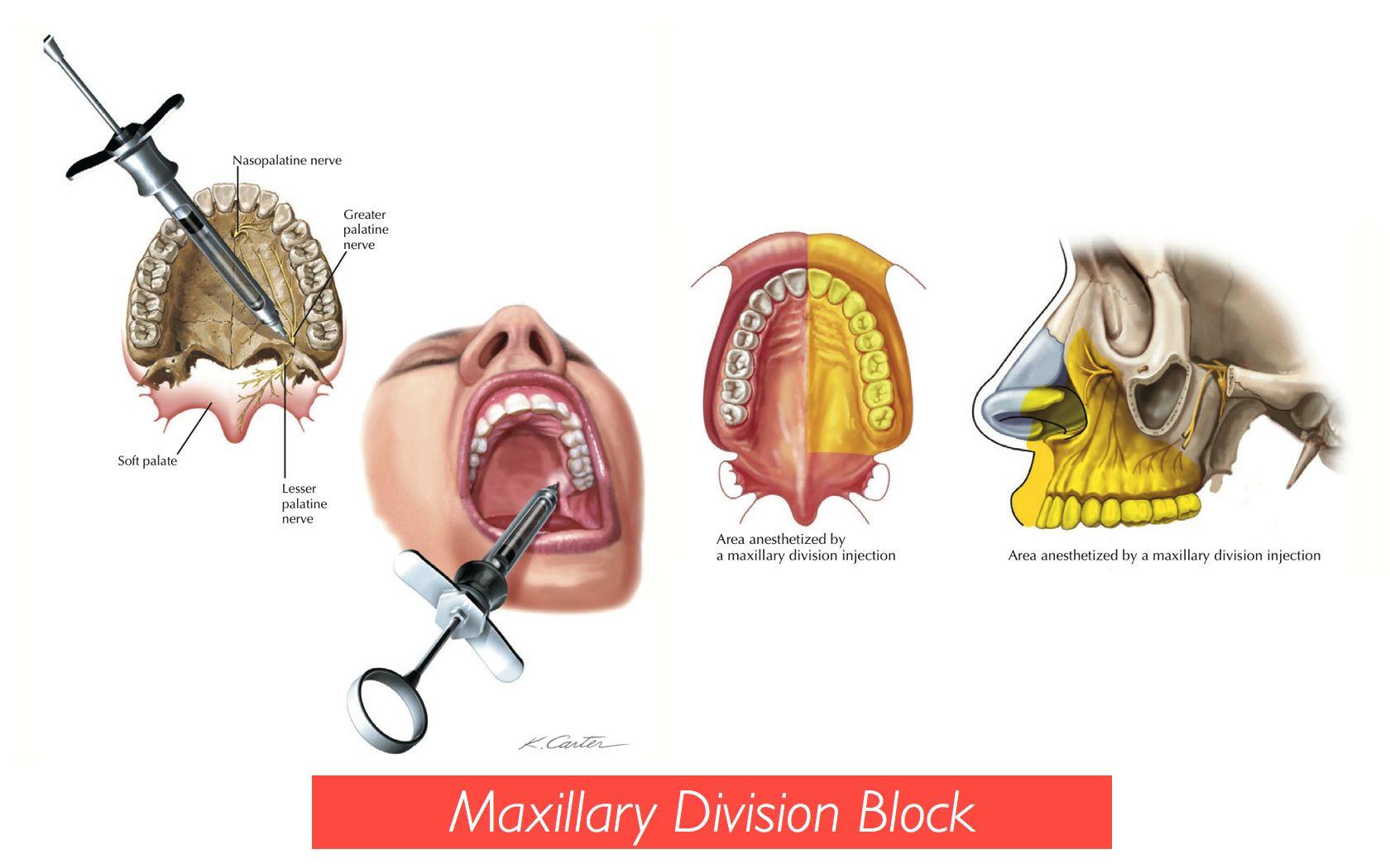 Maxillary Nerve Block: Background, Indications, Contraindications