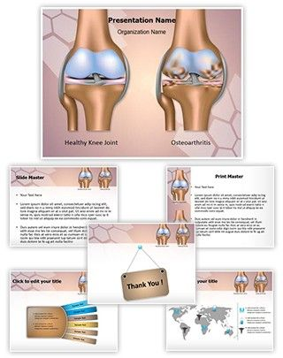 Knee joint osteoarthritis powerpoint presentation template is one of knee joint osteoarthritis powerpoint presentation template is one of the best medical powerpoint templates by editabletemplates toneelgroepblik Image collections