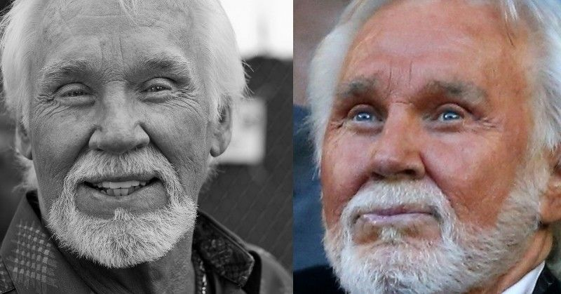 Kenny Rogers Plastic Surgery Before And After Face Photos