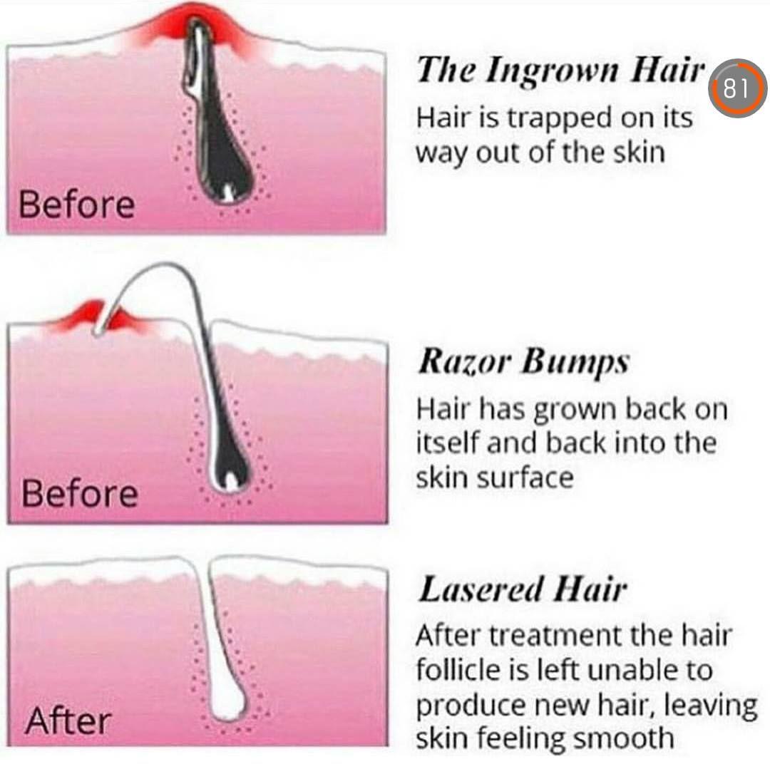 Park Art My WordPress Blog_Pansly Hair Removal Customer Reviews