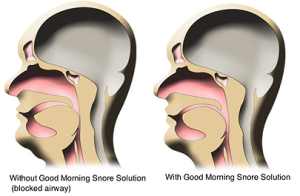 Good Morning Snore Solutions Reviews A Blog For Women What Is Good Morning Snore Solutions Re What Causes Sleep Apnea Snoring Solutions How To Stop Snoring