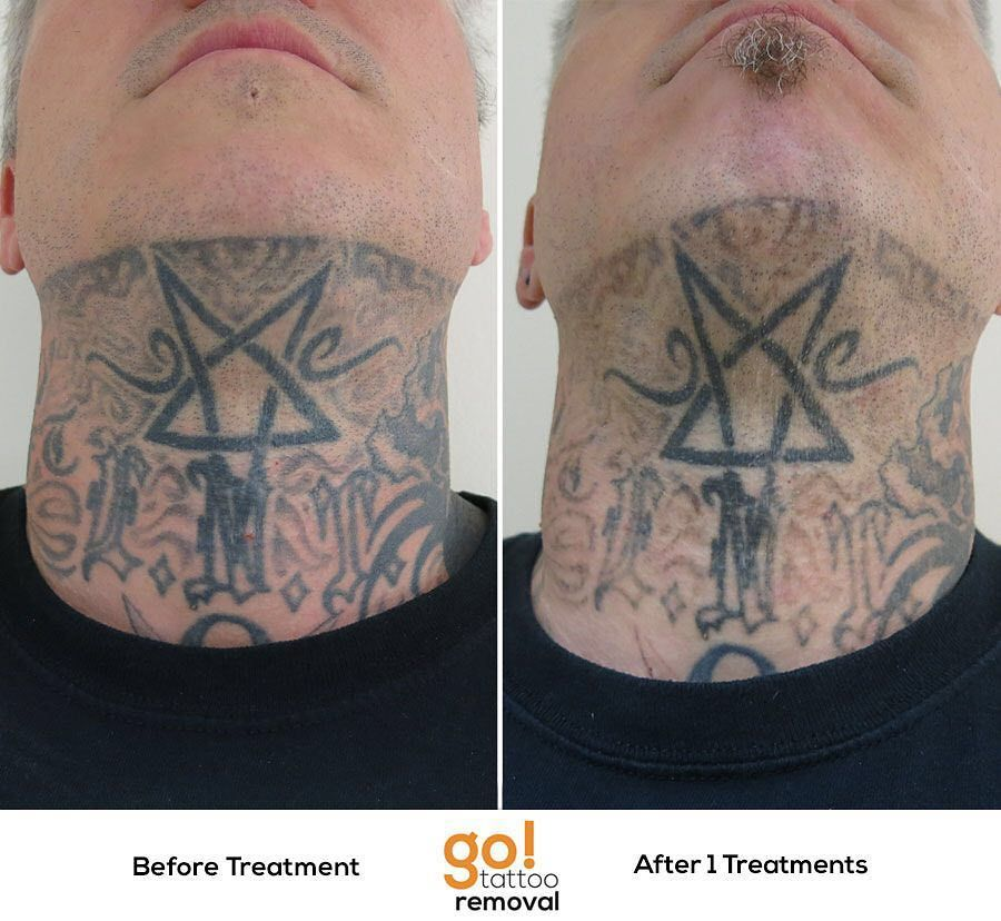 This client is heavily tattooed but has decided to no