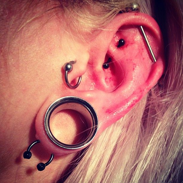 My left ear which has a scaffold, horizontal lobe, 18mm ...