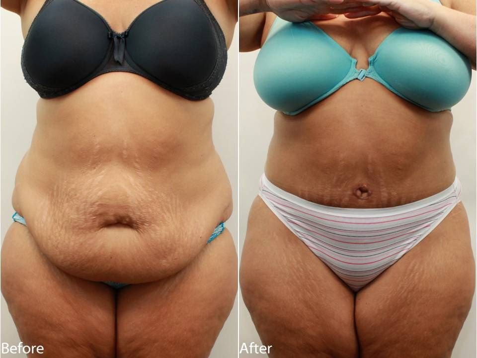 Dr. Darm, Tummy Tuck Before and After Pictures | Tummy ...
