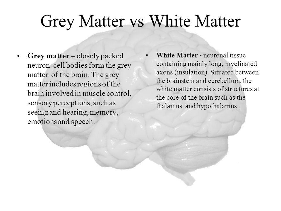 Image result for white matter function in brain   White ...