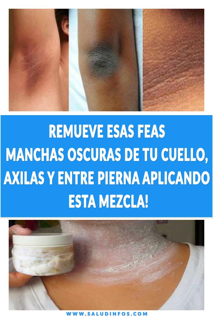 Beauty Skin Beauty Skin Care Skin Care Skin Treatments Beauty Hacks Beauty Remueve Esas Feas Manchas Oscuras De Skin Care Tips Skin Care Skincare Video