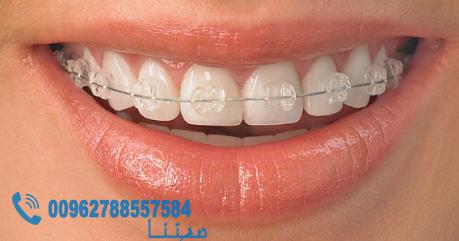 طريقة عمل تقويم الاسنان Dental Braces Braces Treatment Orthodontic Treatment