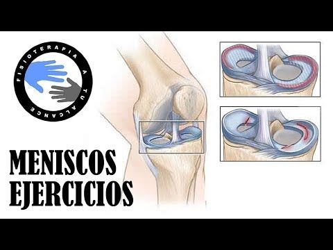Rotura De Menisco Y Cirugía De Menisco Ejercicios De Rehabilitacion Youtube Ejercicios De Rehabilitación Ejercicios Para Rodillas Ejercicios