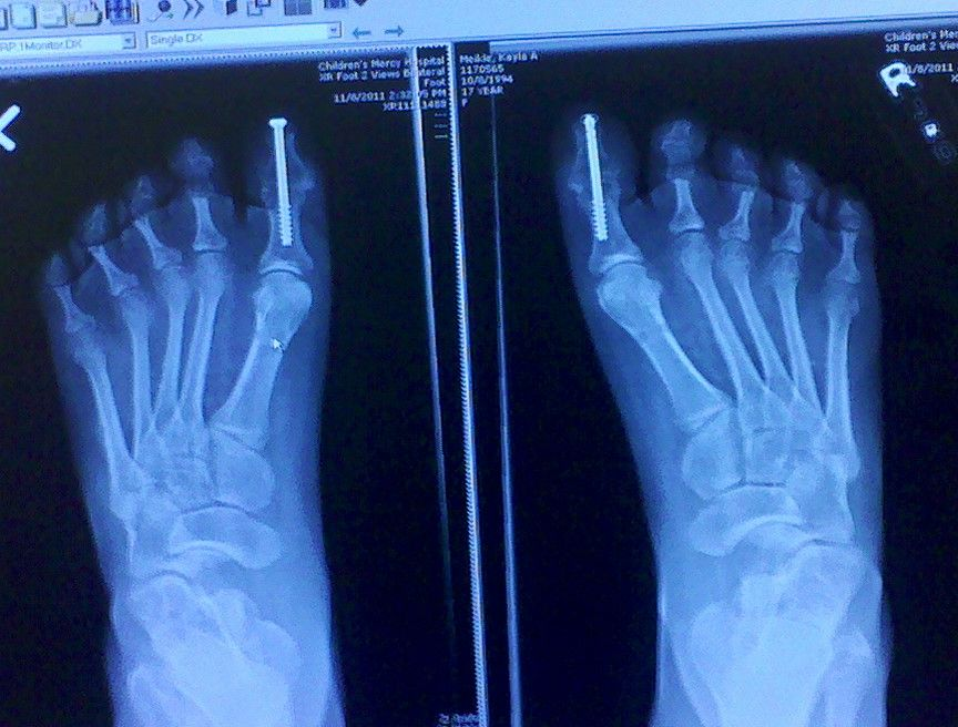 Charcot Marie causes foot deformities such as Hammer toes ...