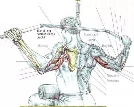 如何获得均衡的马蹄型肱三头肌?