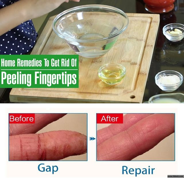 How To Get Rid Of Peeling Fingertips And Cracked Skin??